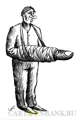 Карикатура: палец в гипсе, Гурский Аркадий