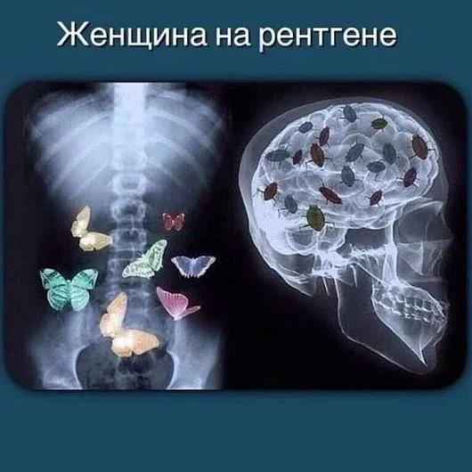Мем: Женщина на рентгеновском снимке