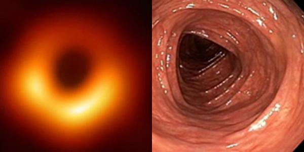 Мем: Колоноскопия Вселенной